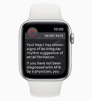 VARSLER OM UJEVN HJERTERYTME: Alle Apple Watch-modeller kan nå varsle om den oppdager at hjerterytmen din er ujevn. Foto: Apple
