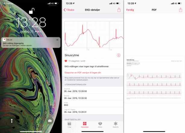 SEND SOM PDF: Du kan eksportere EKG-målingen som en PDF-fil, som du deretter kan sende til legen din. Skjermbilde: Kirsti Østvang