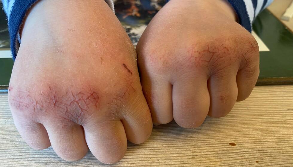 VASKET TIL BLODS: Slik så hendene til Herman (4) ut etter en uke med økt fokus på håndvask i barnehagen. - Når barna kommer hjem fra skole og barnehage med slike hender og gråter av smerte, så minner jeg om at huden vår er en av kroppens viktigste barrierer mot infeksjon, sier mamma Susanne Devor. Foto: Privat