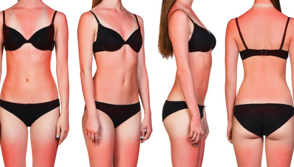 SOLBRENT: Hode, skuldre, bryst, mage og lår er spesielt utsatt når du er lenge ute i sola. Da gjelder det å smøre seg godt før man går ut - eller dekke seg med klær. Illustrasjon: Shutterstock/NTB Scanpix