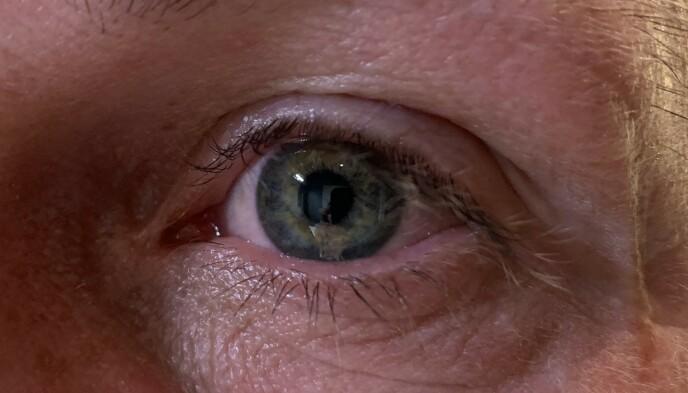BESKYTT ØYNENE I SOLEN: Opplever du symtpomer som ruskfølelse på øynene med mye tåreproduksjon, kan det hende at du har blitt solbrent på øynene dine. Husk å beskytte deg med gode solbriller når du oppholder deg lenge ute i solen. Foto: Linn Merete Rognø.